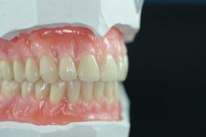 Premium Dentures