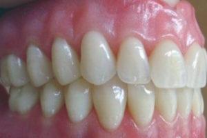 http://www.newwestminsterdenturist.com/wp-content/uploads/2018/03/Complete-upper-and-lower-denture-300x200.jpg