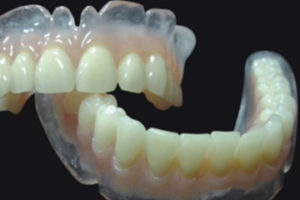 http://www.newwestminsterdenturist.com/wp-content/uploads/2018/03/dentures-with-clear-resin-300x200.jpg