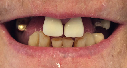 Immediate Initial Placement of Upper Dentures on Day of Extractions