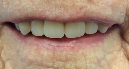 Maxillary Complete Denture Replacement