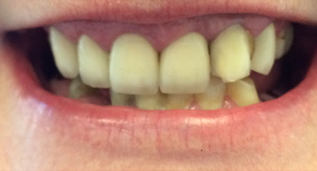 Immediate Maxillary Complete Denture After Extractions