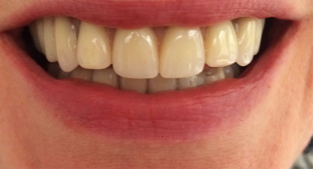 Two Front Teeth Add-On to Existing Upper Denture