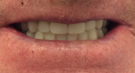 Complete Upper/Lower Denture Replacement