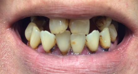 Upper Immediate Denture After Extractions