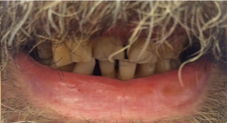 Complete Upper Immediate Denture on Day of Extractions