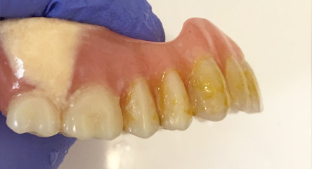 Cleaning Existing Old Denture