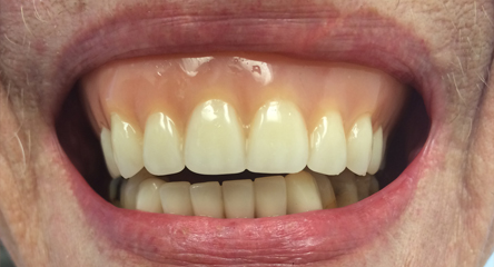 Complete Upper Denture Replacement