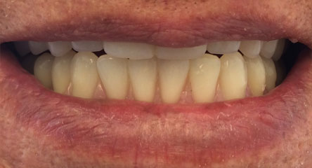 Upper and Lower Replacement Dentures
