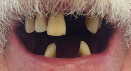 Complete Immediate Upper / Lower Dentures After Extractions