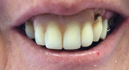 Immediate Upper Denture After Extractions