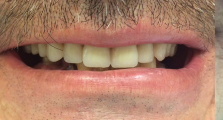 Complete Upper Dentures Immediately After Extractions