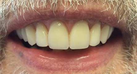 Complete Upper Denture Immediately After Extractions