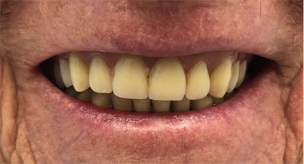 Replacement of Upper Arch Denture